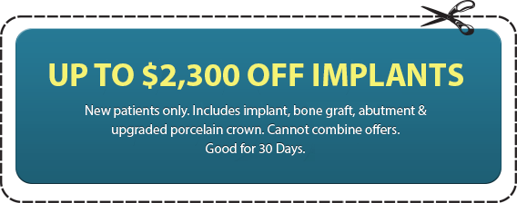 Up to $2,300 Off Implants